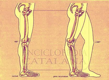Santiago   Charla: Danza y anatomía de la rodilla at Santiago, Chile ...