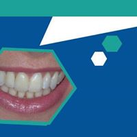 Achieving Predictable Whitening