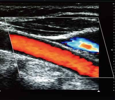 Vascular Disease Screening