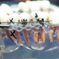 11th Basic Comprehensive Orthodontic Course Module 4
