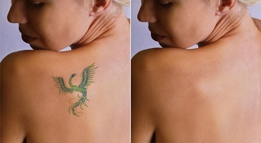 Tattoo Removal for Permanent Makeup and Microblading at AW Advanced ...