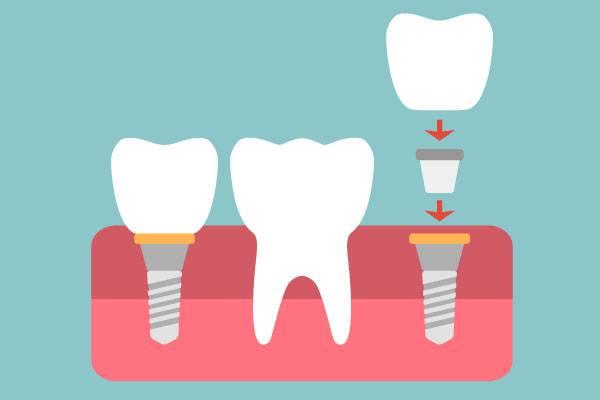 Dental Implant Seminar at Virginia Family Dentistry