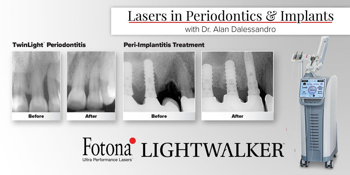 Lasers in Periodontics and Implants w Dr. Alan Dalessandro