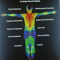 Thermography February 2018