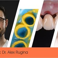 Provizorii si amprenta in protetica dentara fixa
