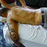 Grand Rapids MI-Burn Scar Massage Therapy CEU Course
