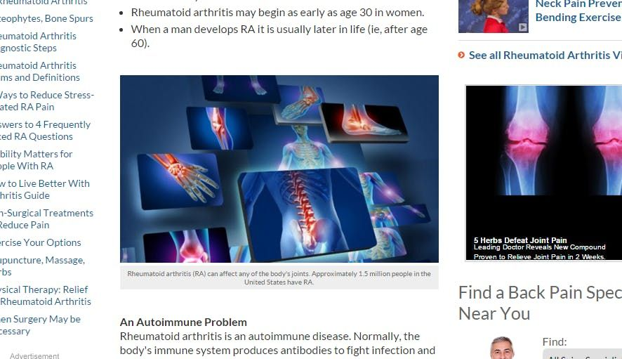 King's Health Partners Inter-Disciplinary Autoimmune