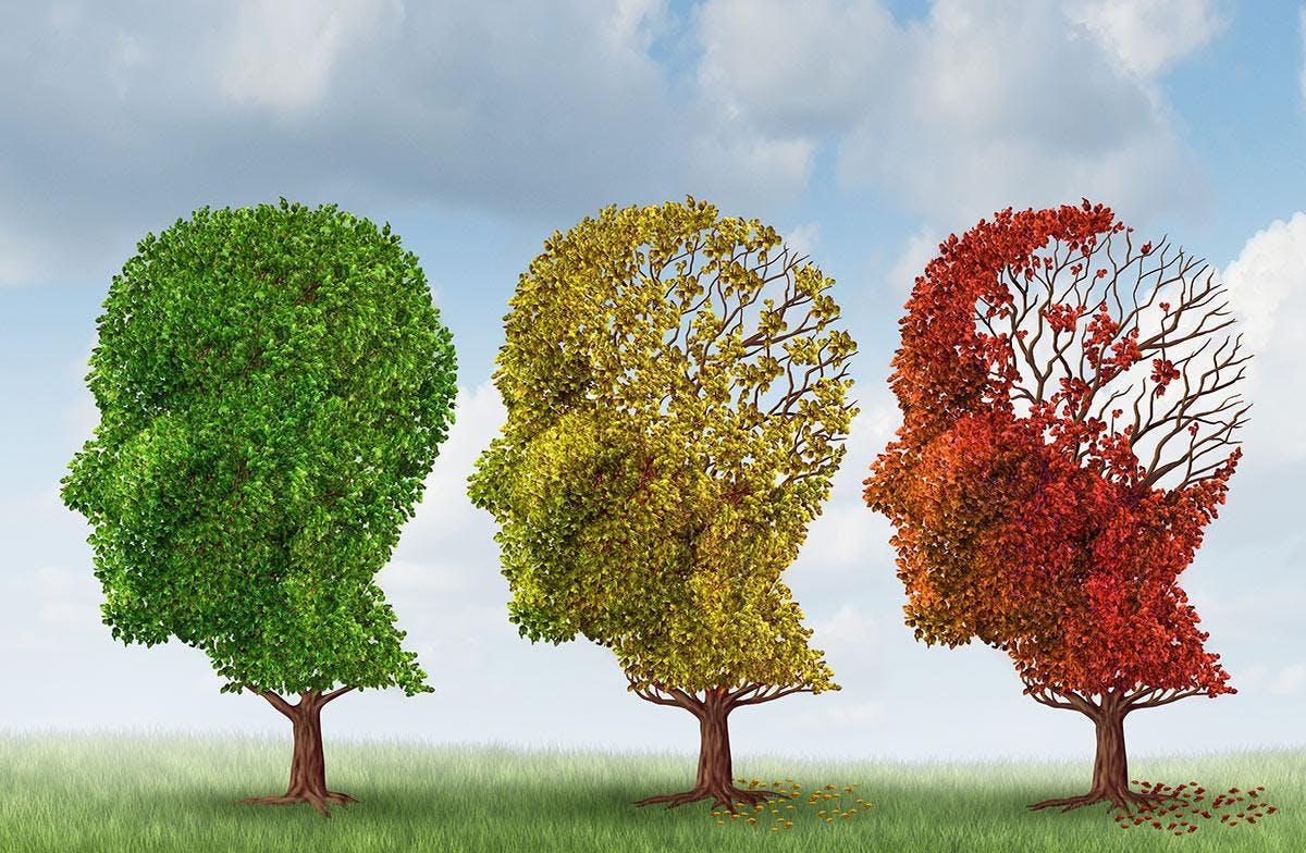 Alzheimers Disease &amp Dementia Care Seminar