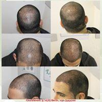 Scalp Pigmentation Kopfhaut