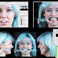 Aesthetic Digital Smile Design