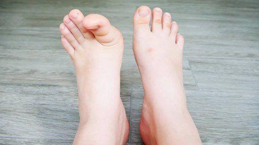 Vboen palec spadl pn klenba nohy s Jolanou Novotnou