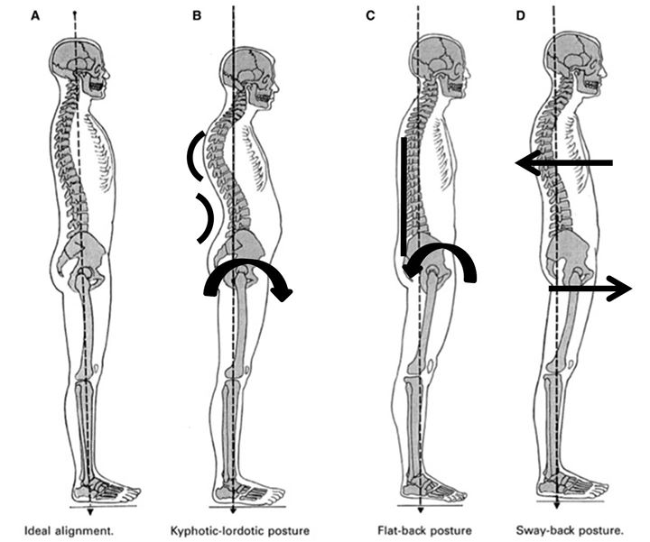 reading the body using postural analysis