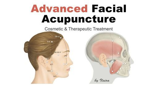 Advanced Aesthetic Acupuncture Training, 22 January   Event in Athens   AllEvents.in
