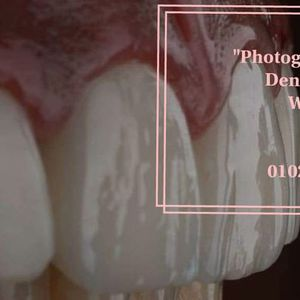 Photography for dentists