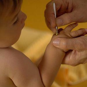 Shnishin - Die Kunst der nadellosen Kinderakupunktur