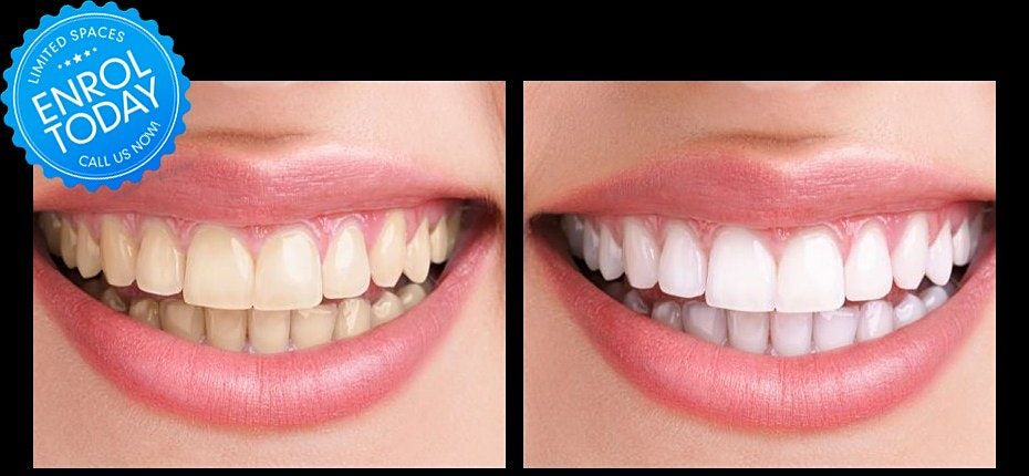 Houston Tx School of Glamology Teeth Whitening Certification