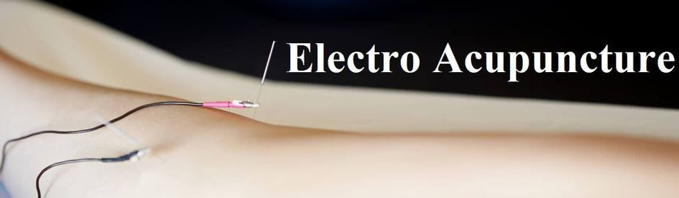 Hλεκτροβελονισμός • Electroacupuncture, 2 October   Event in Athens   AllEvents.in
