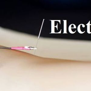 H  Electroacupuncture
