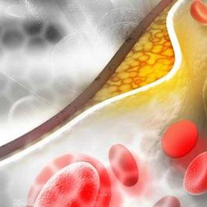 Neighborhood Health Series Cholesterol Good Bad or Bunk