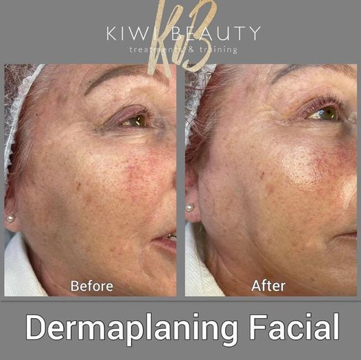Dermaplaning Training Course, 2 November | Event in Waterlooville | AllEvents.in
