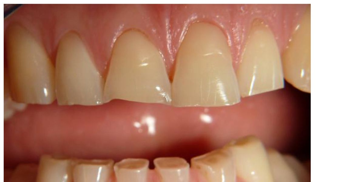 Treating simple tooth wear cases in practice  (Hands-on) Course