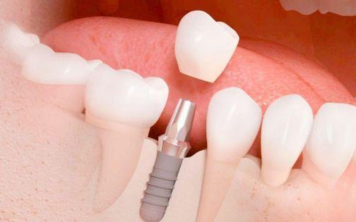 Posgrado de Rehabilitacin y Regeneracin sea con Implantes