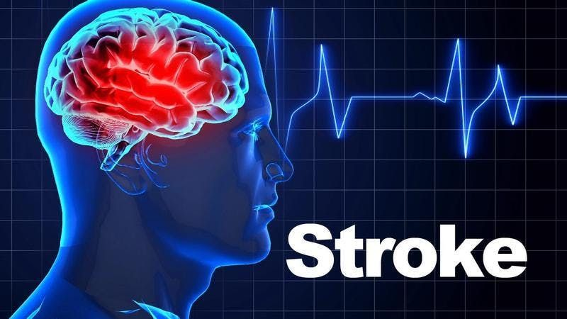 National Stroke Therapy Study Day